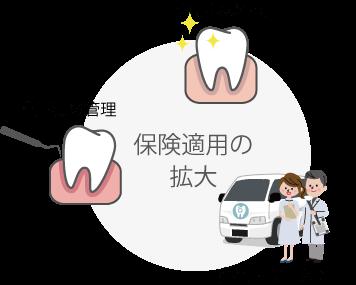 むし歯予防・歯周病管理・訪問歯科で保険適用